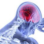 ケイ素で関節の炎症が改善する?関節炎とケイ素の関係